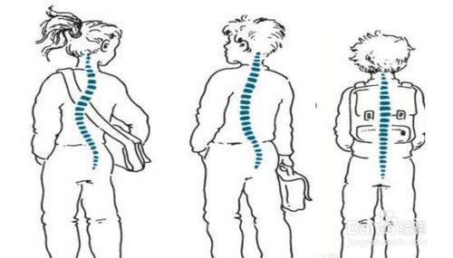 Nohoo Children Products-Nohoo Shoulder Backpack Help Solve The Spines Problem